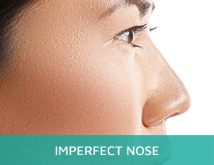 Imperfect Nose