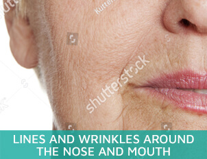Lines and wrinkles around the nose and mouth