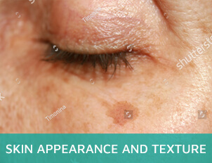 Skin appearance and texture