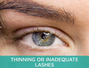 Thinning or inadequate lashes